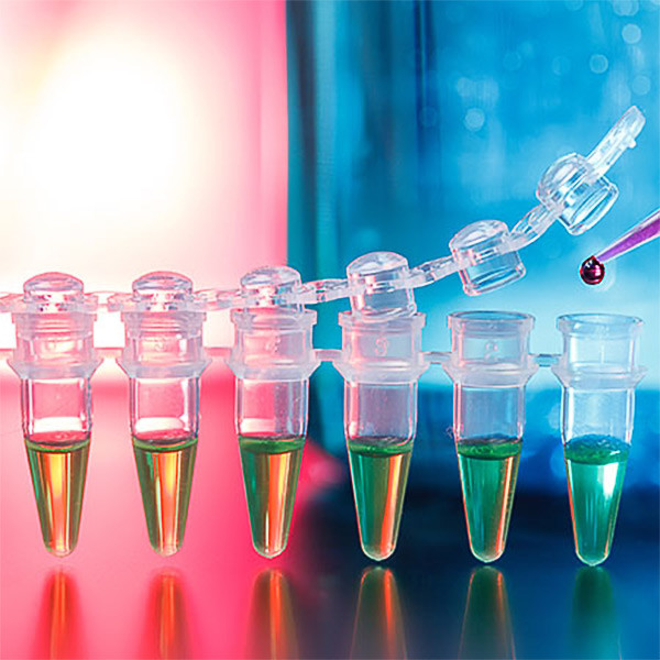 Infectious Diseases ‒  PCR & Real-Time PCR Diagnostic Kits